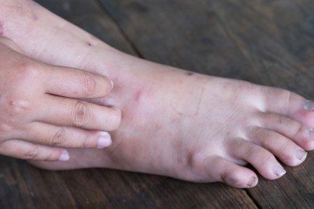 diabete et mal aux pieds