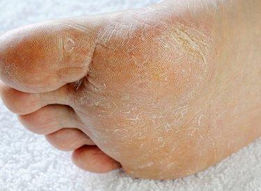 trou dans la peau pied